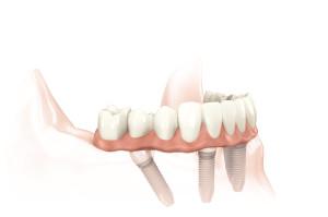 bridges vs implants